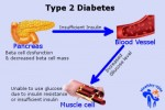 10 Facts about Diabetes Type 2
