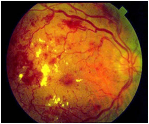 Diabetic Retinopathy Facts