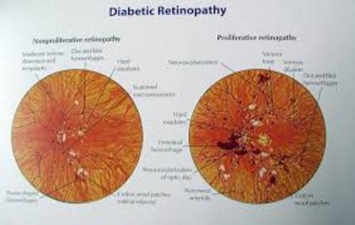 Diabetic Retinopathy Pic