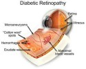 10 Facts about Diabetic Retinopathy