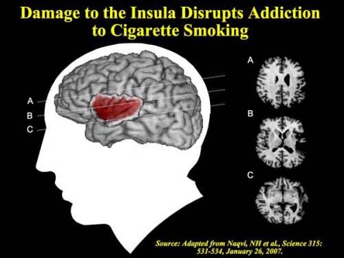 Smoking insula