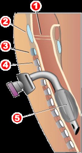 Duchenne Muscular Dystrophy Pic
