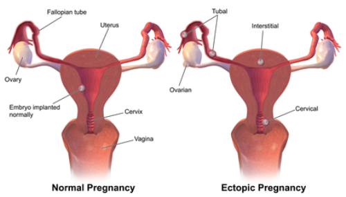 Ectopic Pregnancy Facts