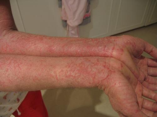 Eczema Pictures